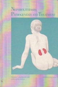 Nephrolithiasis: pathogenesis and treatment