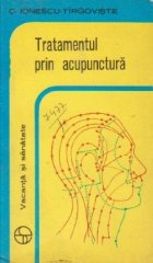Tratamentul prin acupuntura